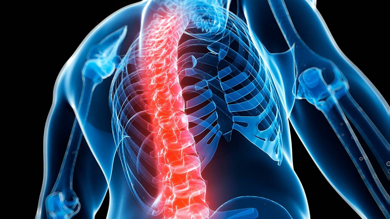 شکستگی هیپ استخوان ران