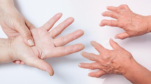 بیماری روماتوئید آرتریت