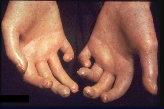 دست بیمار مبتلا به اسکلرودرمی